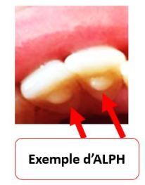 alph3
