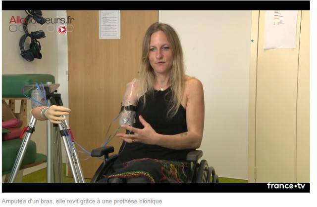prothèse bionique