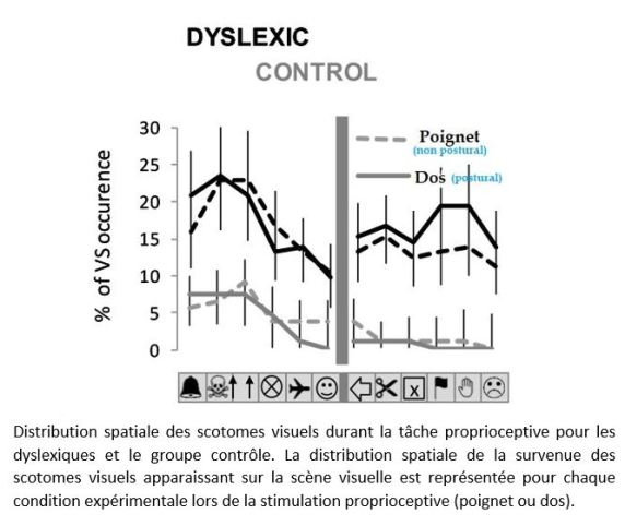 stimulation proprioceptive